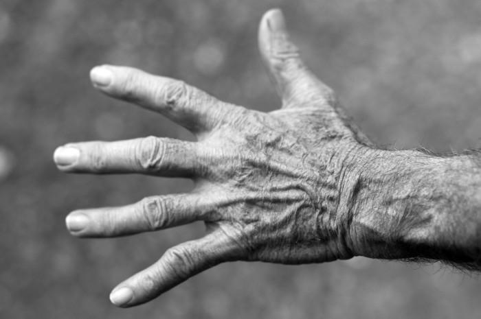 Egzema na dłoniach może wskazywać na obciążenie organizmu toksynami.